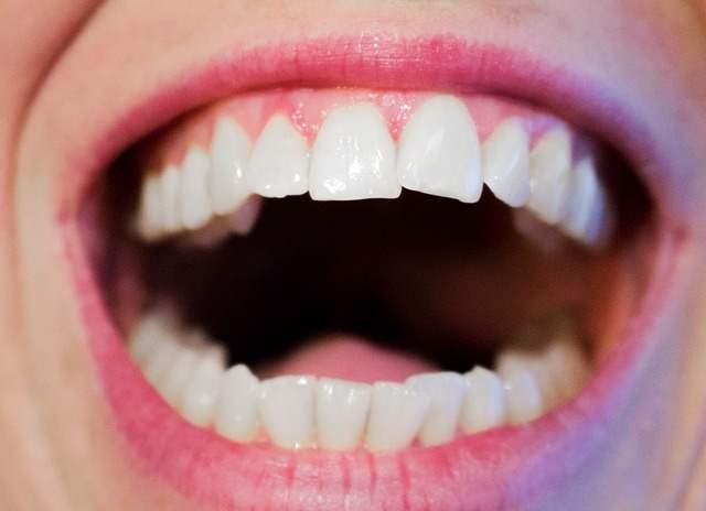 teeth-1652937